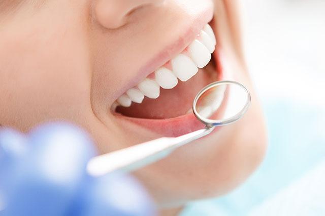 歯周病予防イメージ